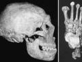 1398383461_Chudesa-hirurgii-kamennogo-veka